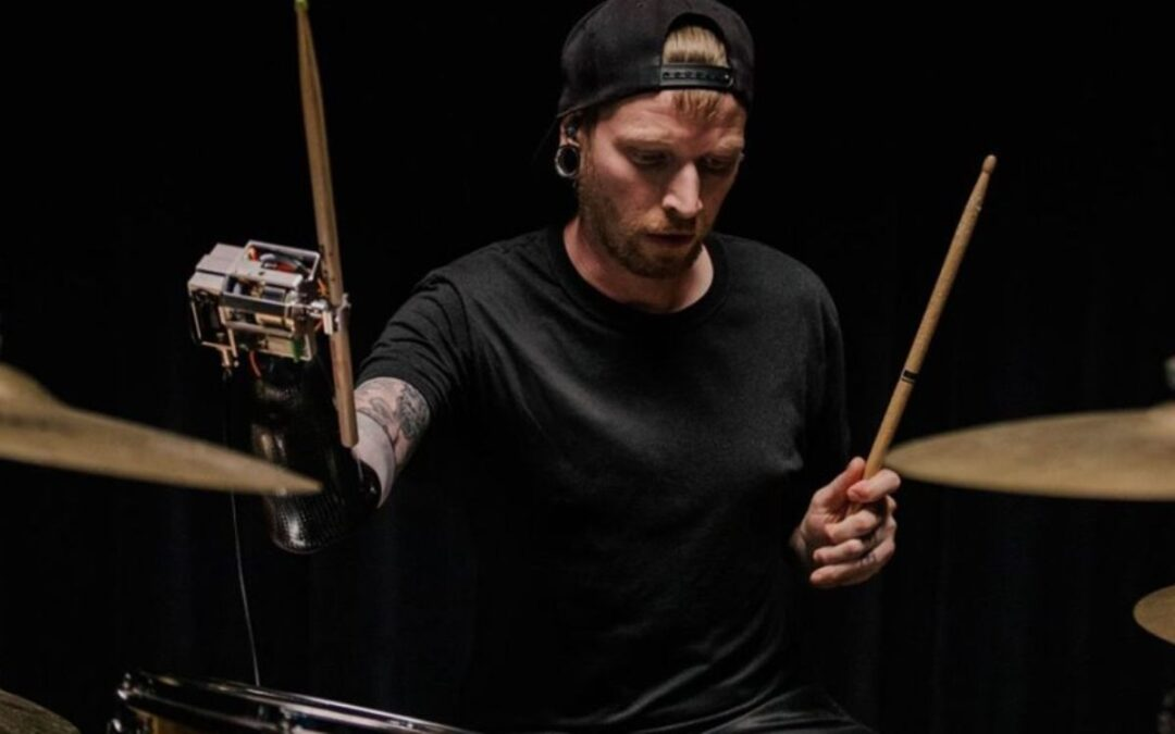 Google's TensorFlow prosthesis allows amputee drummer to play again